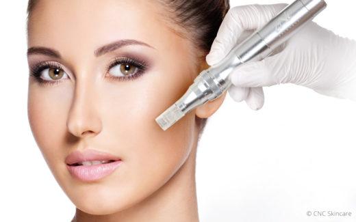 Micro Needling der Firma CNC – Skincare