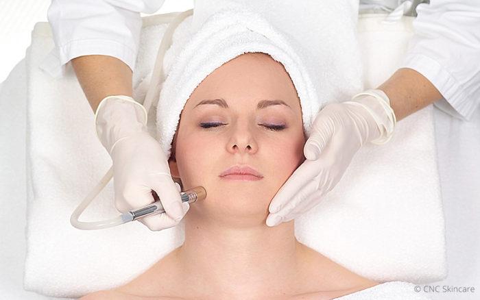 Microdermabrasion der Firma CNC – Skincare